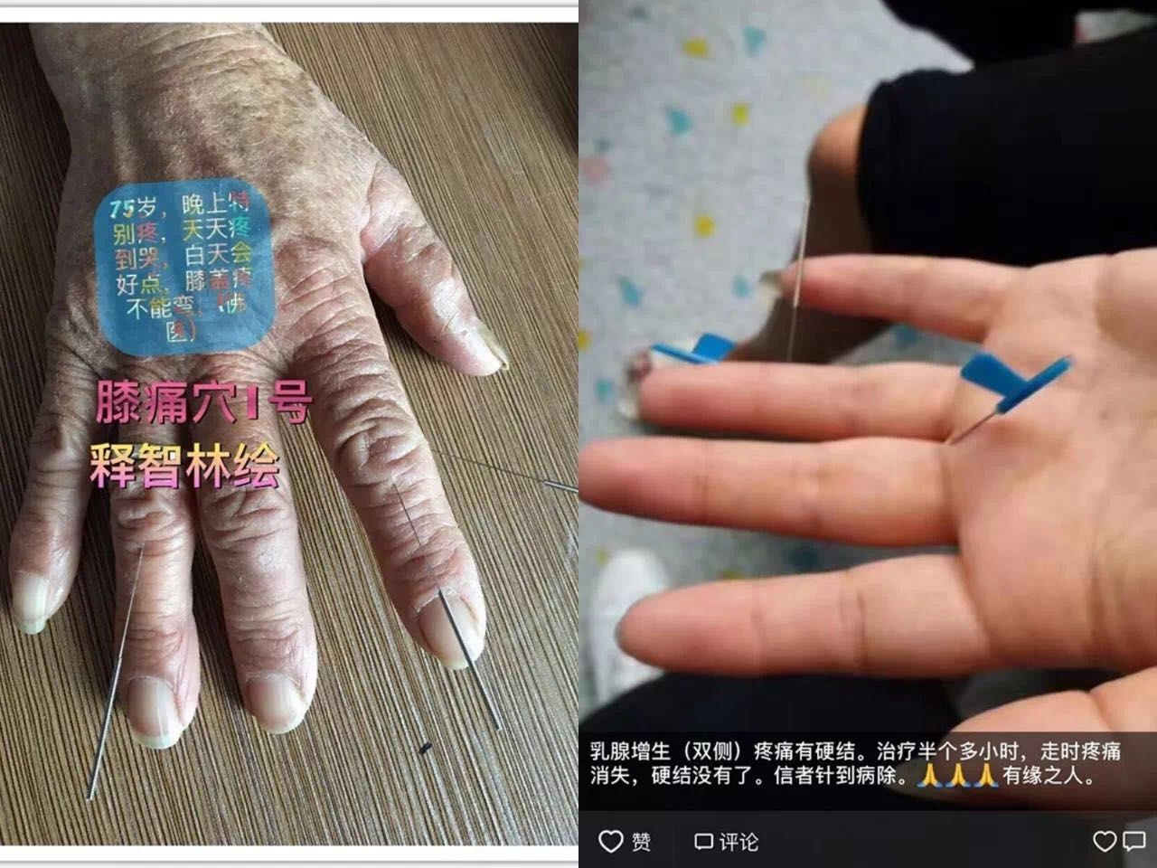 柳州针灸培训机构