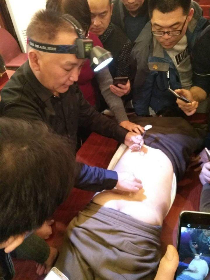 杭州针灸学校培训