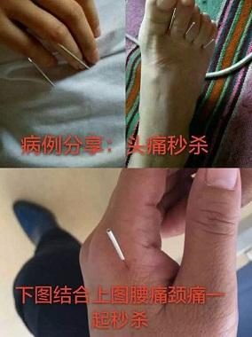 重庆知名邱飞虎闪电针灸培训价格
