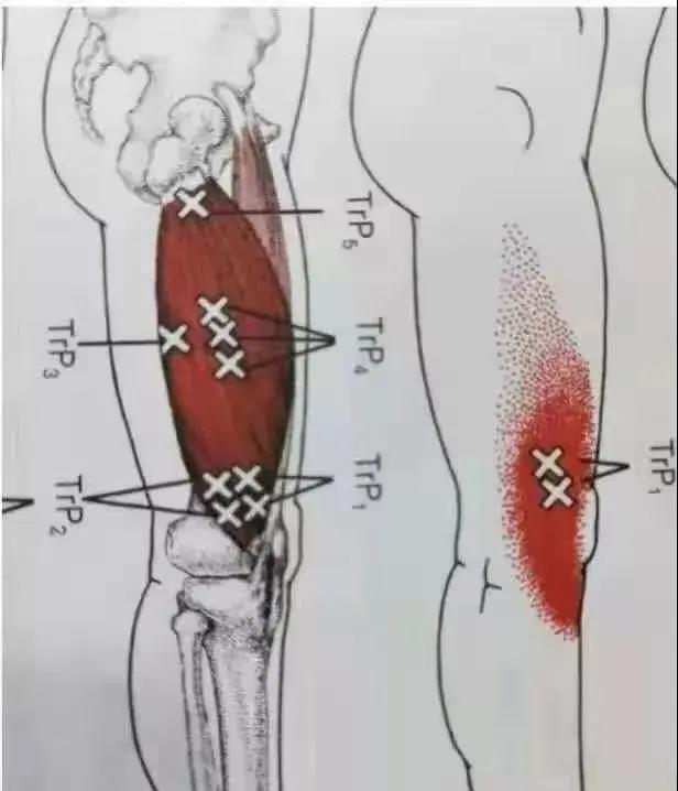 成都叶颖华肌筋膜松解术价格