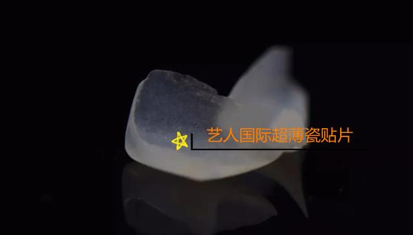 台州正规的纳米树脂美牙一对一教学 包教包会